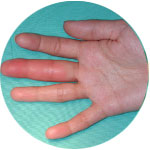Hand -Infections